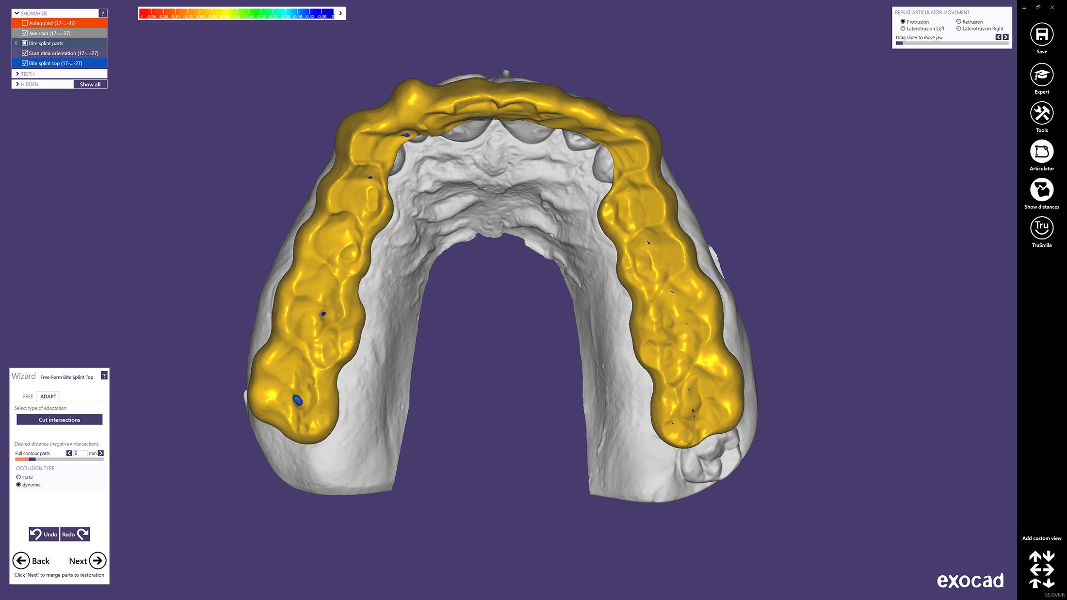 https://www machines-3d com/nl/exocad-dental-cad-xml-364_524